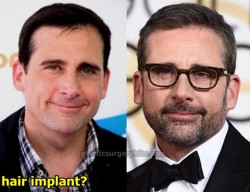 Steve Carell Plastic Surgery Hair Implant