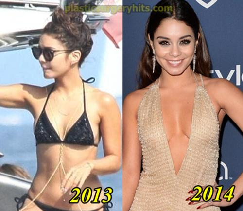 Vanessa Hudgen Plastic Surgery Breast implants