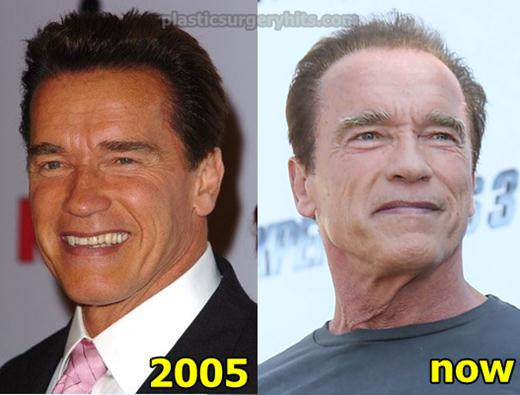 Arnold Schwarzenegger Plastic Surgery Fact or Rumor