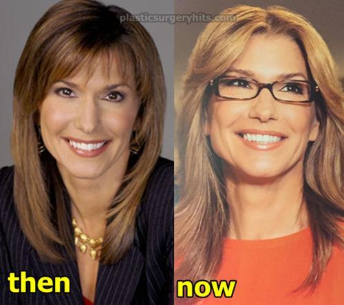 Carol Costello Plastic Surgery Fact or Rumor