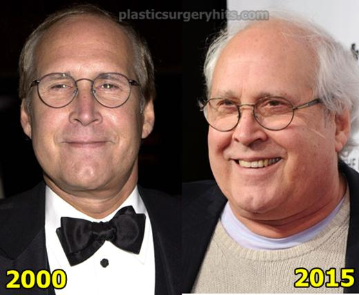 Chevy Chase Plastic Surgery Fact or Rumor
