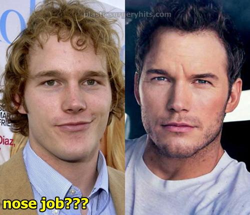 Chris Pratt Plastic Surgery Nose Job