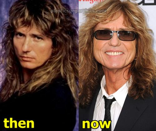 David Coverdale Plastic Surgery Before and After