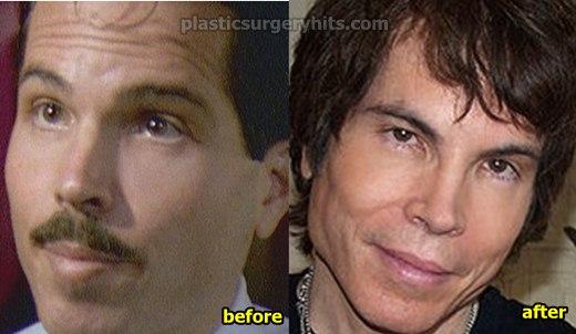 Gerald Posner Plastic Surgery