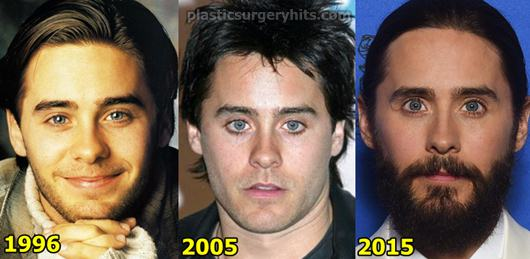 Jared Leto Plastic Surgery Botox