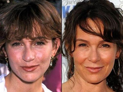 Jennifer Grey Plastic Surgery Before & After