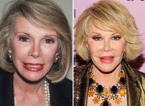 Joan Rivers Plastic Surgery Before & After