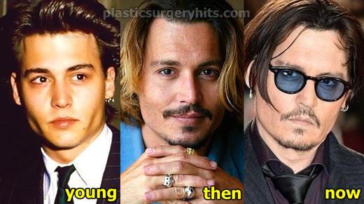 Johnny Depp Plastic Surgery