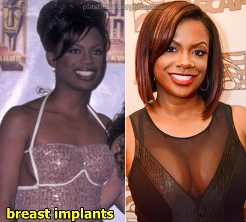 Kandi Burruss Breast Implants