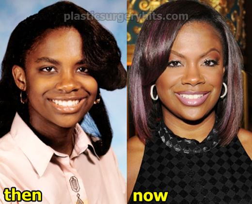 Kandi Burruss Plastic Surgery Botox Nose Job