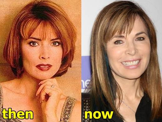 Lauren Koslow Plastic Surgery Before and After