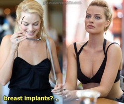 Margot Robbie Breast Implants