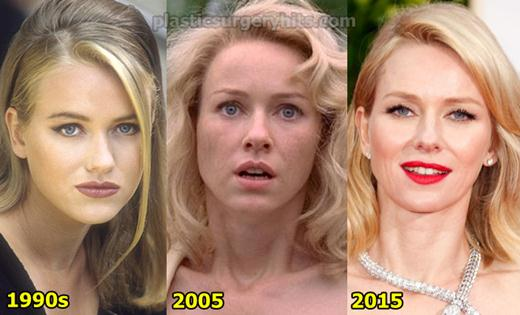 Naomi Watts Plastic Surgery Fact or Rumor