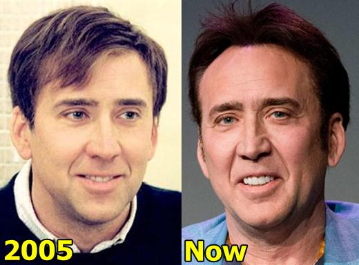 Nicolas Cage Plastic Surgery Before and After
