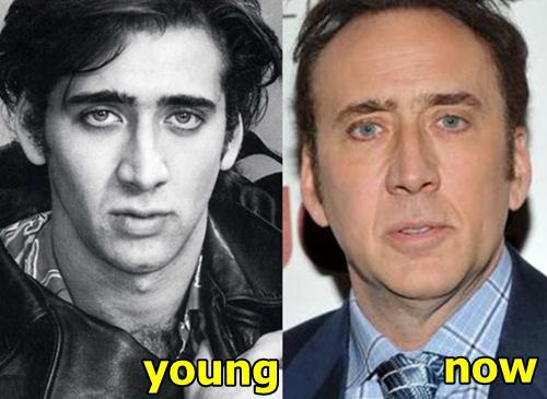 Nicolas Cage Plastic Surgery