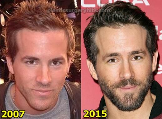 Ryan Reynolds Plastic Surgery Fact or Rumor