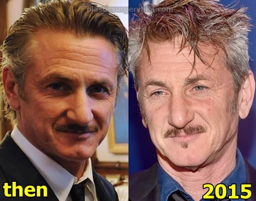 Sean Penn Plastic Surgery Before and After