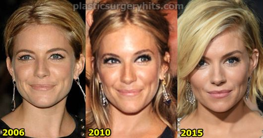 Sienna Miller Plastic surgery