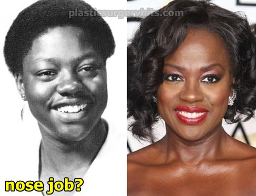 Viola Davis Plastic Surgery Nose Job