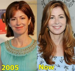 Dana Delany Plastic Surgery Before and After