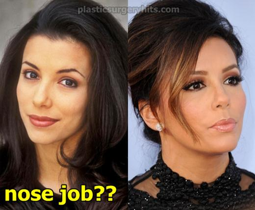 Eva Longoria Nose Job