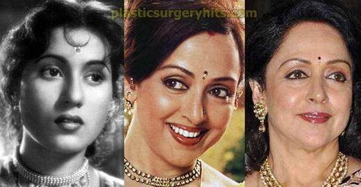 Hema Malini Nose Job Rumor