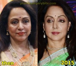 Hema Malini Plastic Surgery