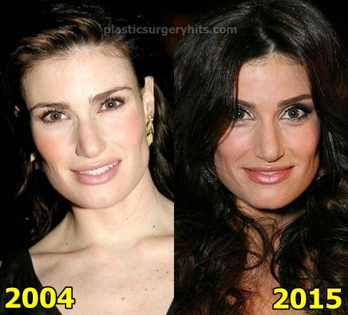 Idina Menzel Plastic Surgery Fact or Rumor