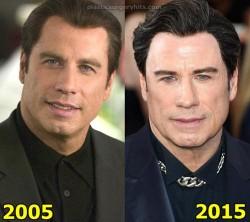 John Travolta Plastic Surgery Facelift Botox