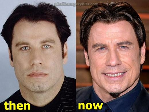 John Travolta Plastic Surgery Fact or Rumor