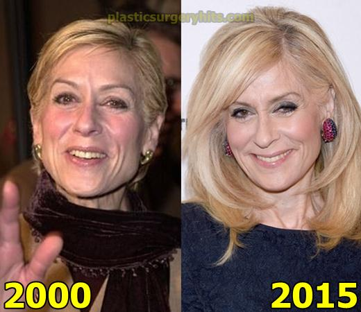 Judith Light Plastic Surgery Before and After