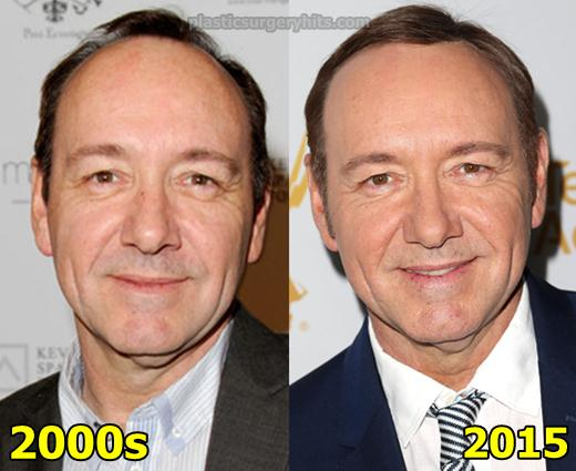 Kevin Spacey Plastic Surgery Fact or Rumor