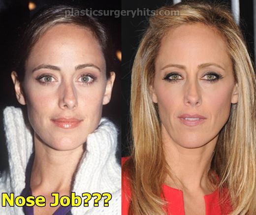 Kim Raver Nose Job