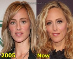 Kim Raver Plastic Surgery Fact or Rumor