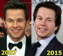 Mark Wahlberg Plastic Surgery