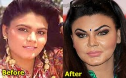 Rakhi Sawant Plastic Surgery Nose Job facelift
