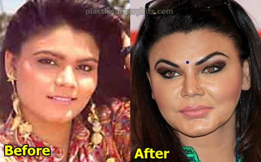 Rakhi Sawant Plastic Surgery Nose Job facelift