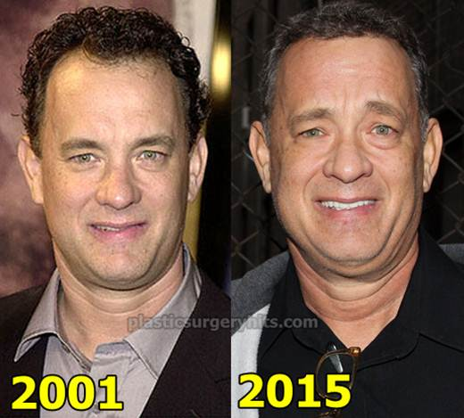 Tom Hanks Plastic Surgery fact or Rumor