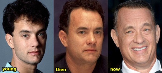 Tom Hanks Plastic Surgery