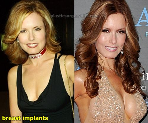 Tracey Bregman Breast Implants