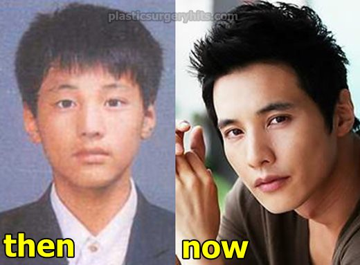 Won Bin Plastic Surgery fact or Rumor