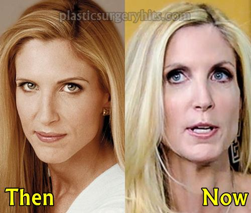 Ann Coulter Plastic Surgery