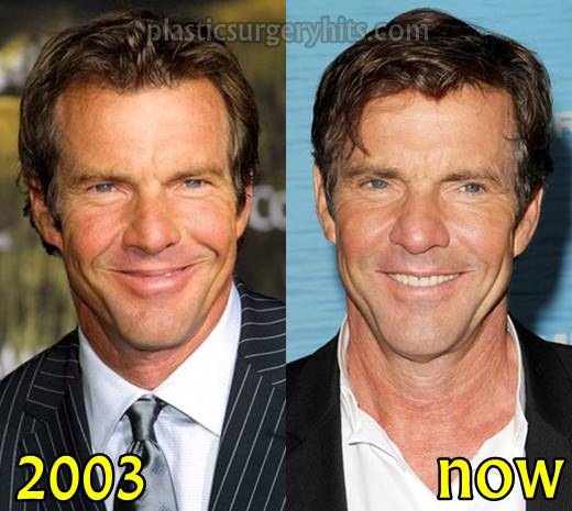 Dennis Quaid Plastic Surgery Fact or Rumor