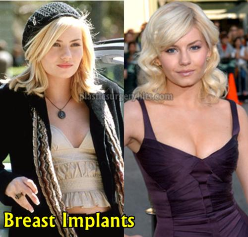 Elisha Cuthbert Breast Implants