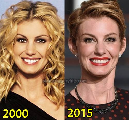 Faith Hill Plastic Surgery Through botox Injection
