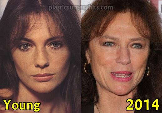 Jacqueline Bisset Facelift and Botox Possibility