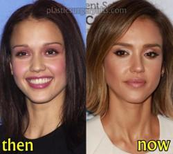 Jessica Alba Plastic Surgery