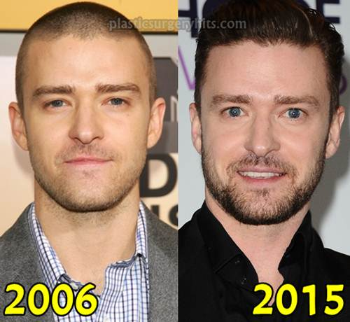 Justin Timberlake Plastic Surgery fact or Rumor