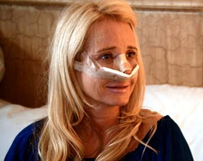 Kim Richards Plastic Surgery Through Nose Job