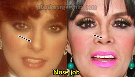Lucia Mendez Nose Job
